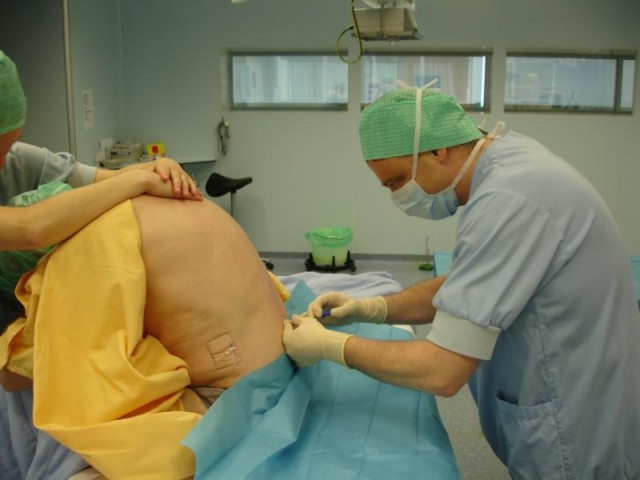 tecnica epidurale