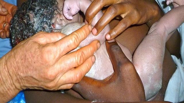 vernice-caseosa-neonato