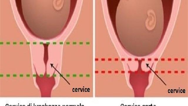 foto_incontinenza_cervicale