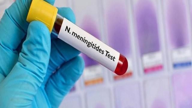foto meningite