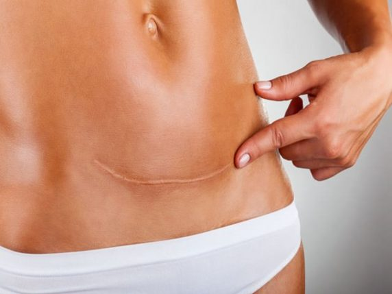 belly after caesarean section