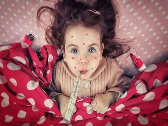 morbillo foto bambina
