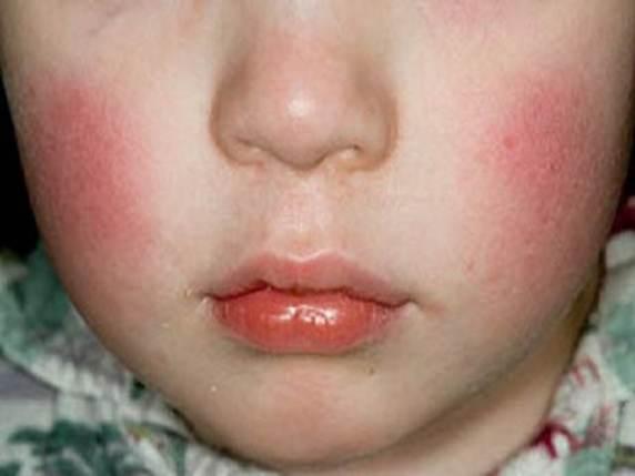 guance rosse quinta malattia
