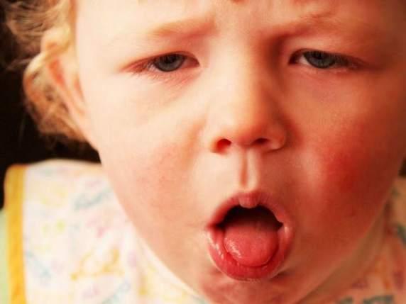sintomi quinta malattia