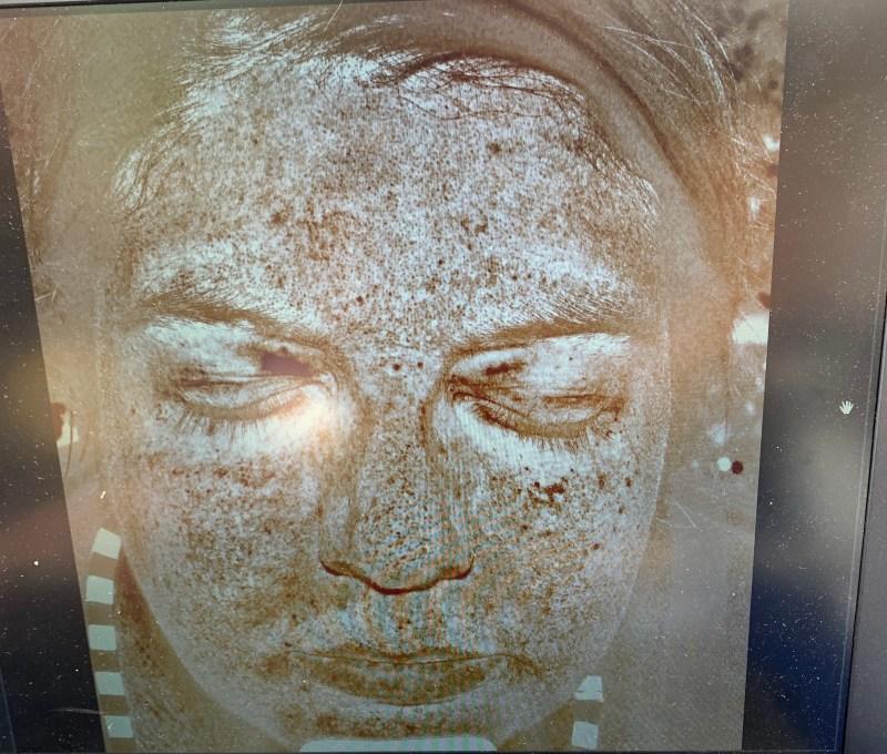 crème solaire - photo de la peau avec caméra UV Réseau Mélanome Canada