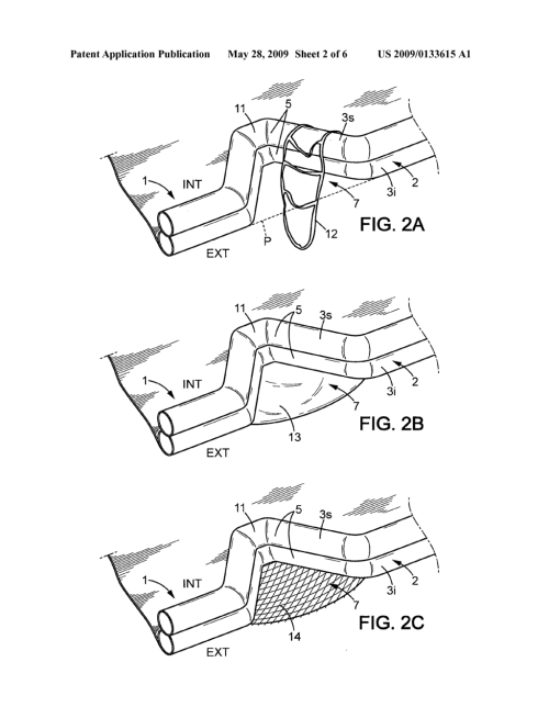 small resolution of boat with a peripheral float particularly inflatable life raft diagram schematic and image 03