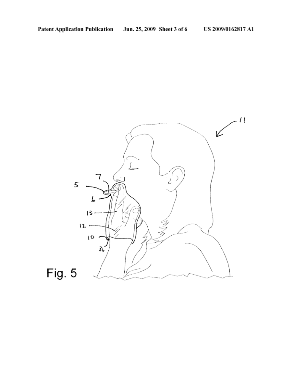 medium resolution of kissing shield game and method of use thereof diagram schematic and image 04