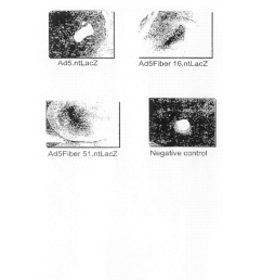 gene delivery vectors provided with a tissue tropism for smooth muscle cells and or endothelial cells diagram schematic and image 21 [ 1024 x 1320 Pixel ]