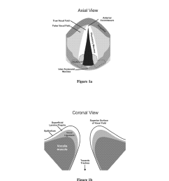 hydrogels for vocal cord and soft tissue augmentation and repair diagram schematic and image 02 [ 1024 x 1320 Pixel ]