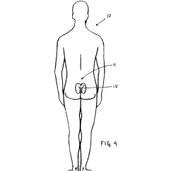 Wound Assessment Diagram R33 Rb25det Wiring Location Schematic Sacral Dressing And Method Of Use