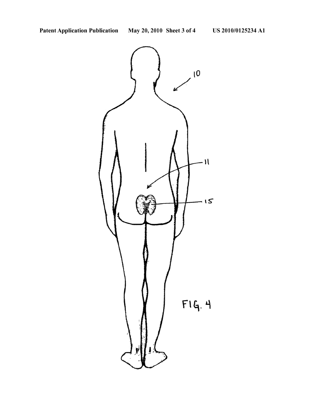 wound assessment diagram humbucker wiring location schematic sacral dressing and method of use