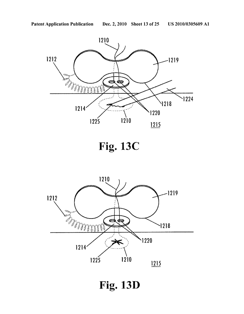 Implantable purse string suture tensioning device diagram schematic and image 14
