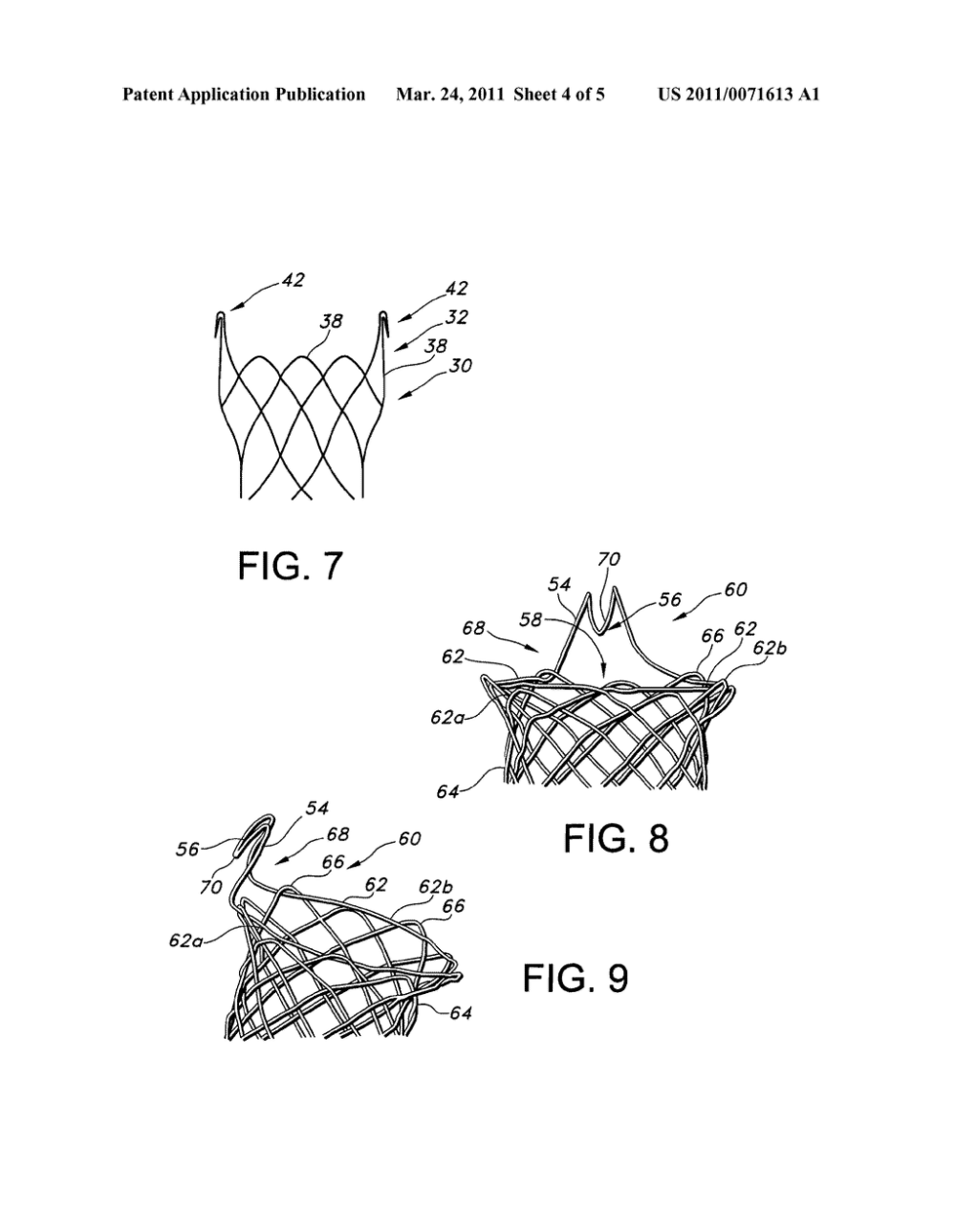medium resolution of integrated stent retrieval loop adapted for snare removal and or optimized purse stringing diagram schematic and image 05