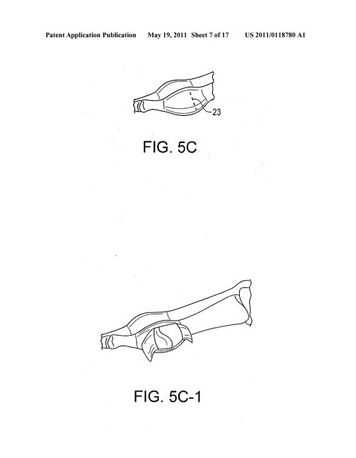 small resolution of bunion repair using suture button construct diagram schematic and image 08