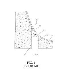 ultrasonic sinus membrane periosteum separation tool set diagram schematic and image 02 [ 1024 x 1320 Pixel ]