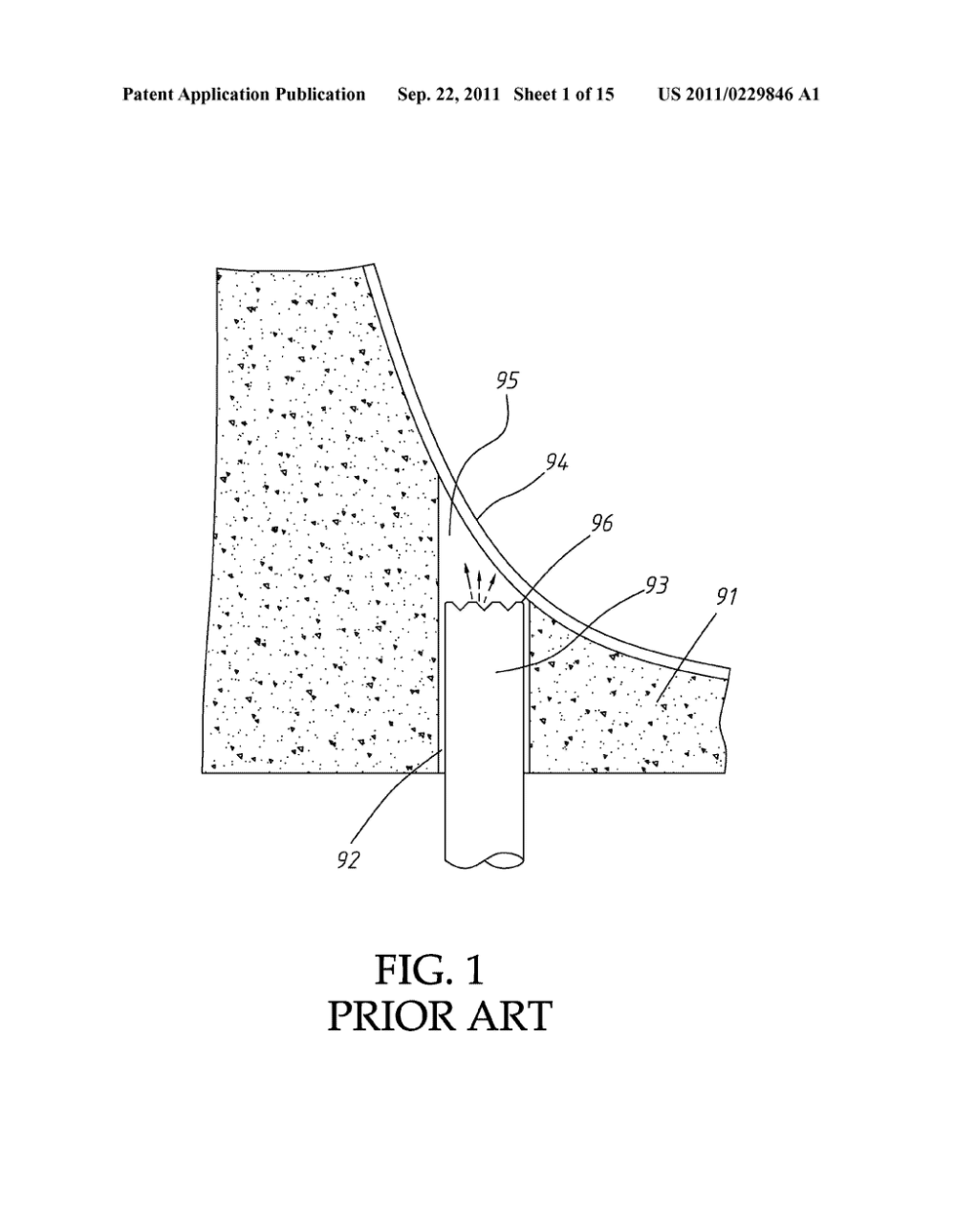 medium resolution of ultrasonic sinus membrane periosteum separation tool set diagram schematic and image 02