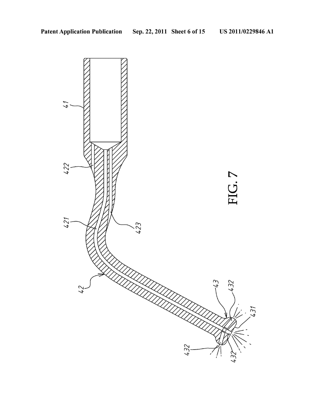 hight resolution of ultrasonic sinus membrane periosteum separation tool set diagram schematic and image 07