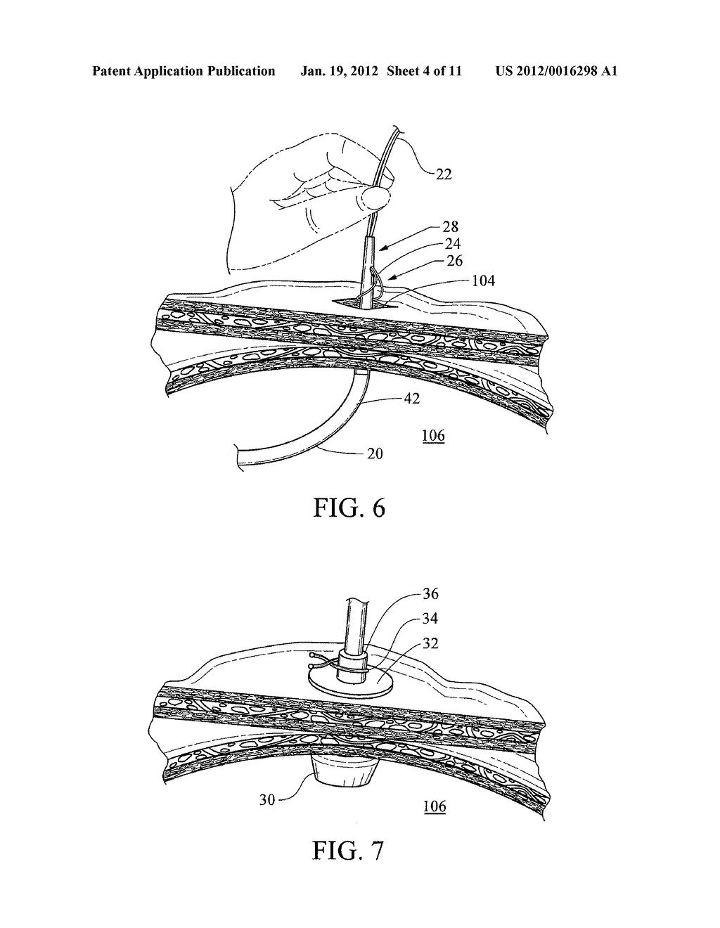 hight resolution of peg tube diagram
