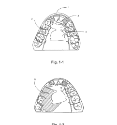 removable orthodontic or orthopedic appliance with inlaid design piece and the method of construction diagram [ 1024 x 1320 Pixel ]