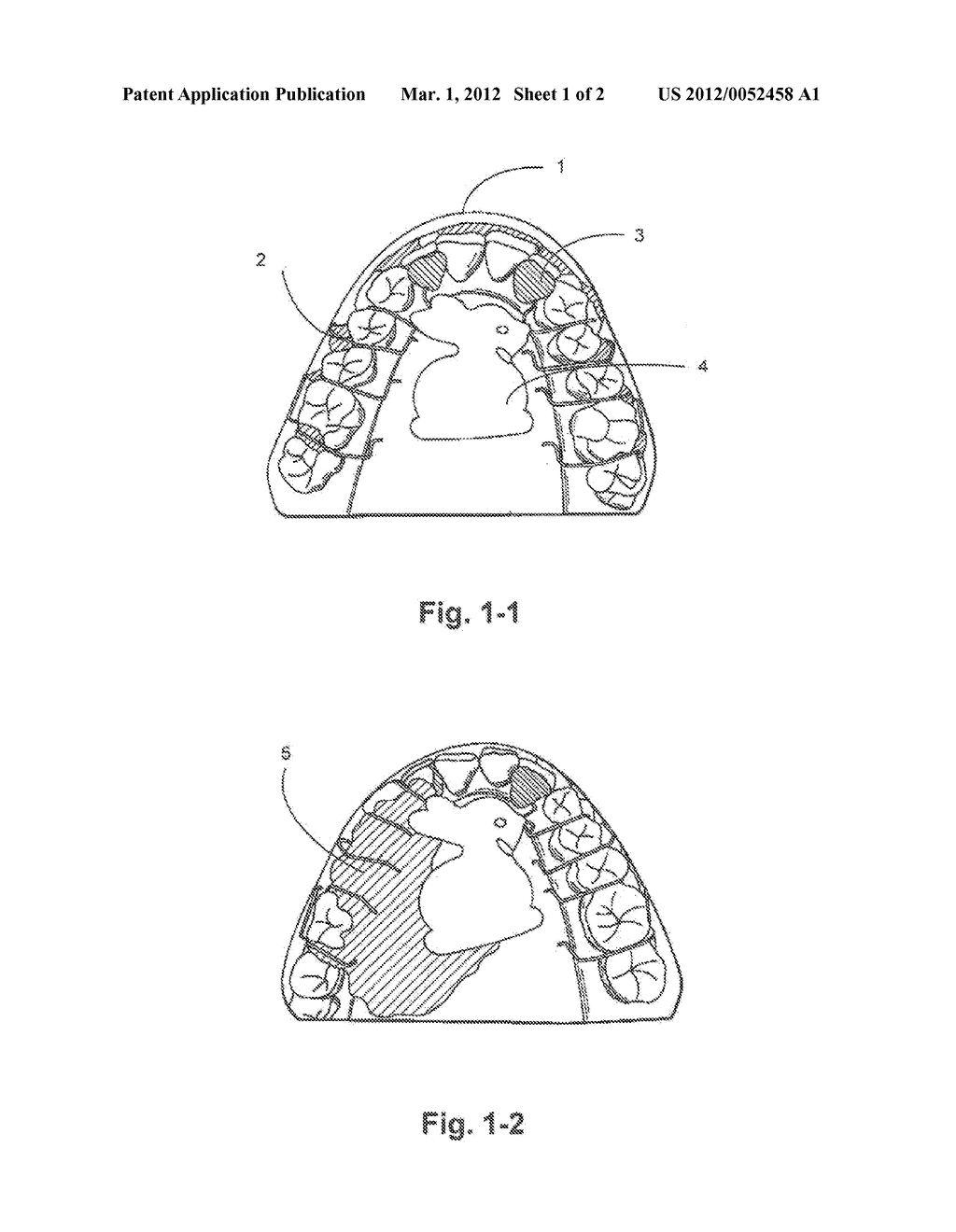 hight resolution of removable orthodontic or orthopedic appliance with inlaid design piece and the method of construction diagram