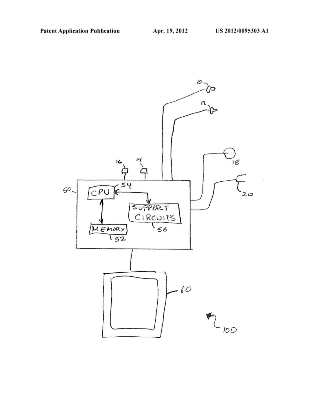 medium resolution of method for non invasive blood glucose monitoring diagram circuit diagram non invasive glucose meter