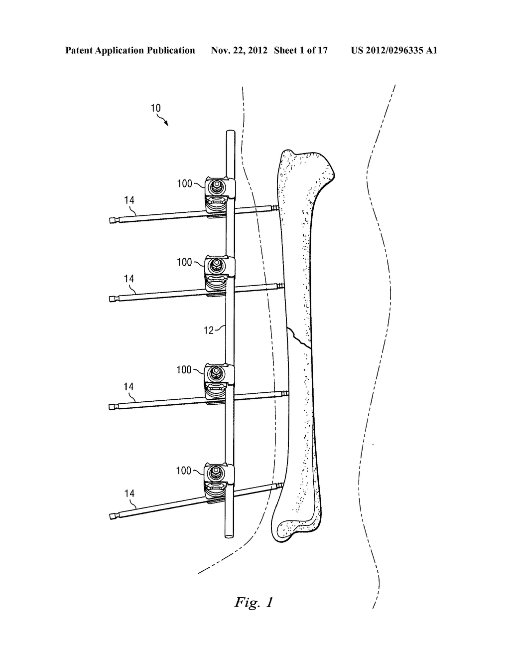 hight resolution of external fixation clamp using a trigger mechanism and stored spring energy diagram schematic and image 02