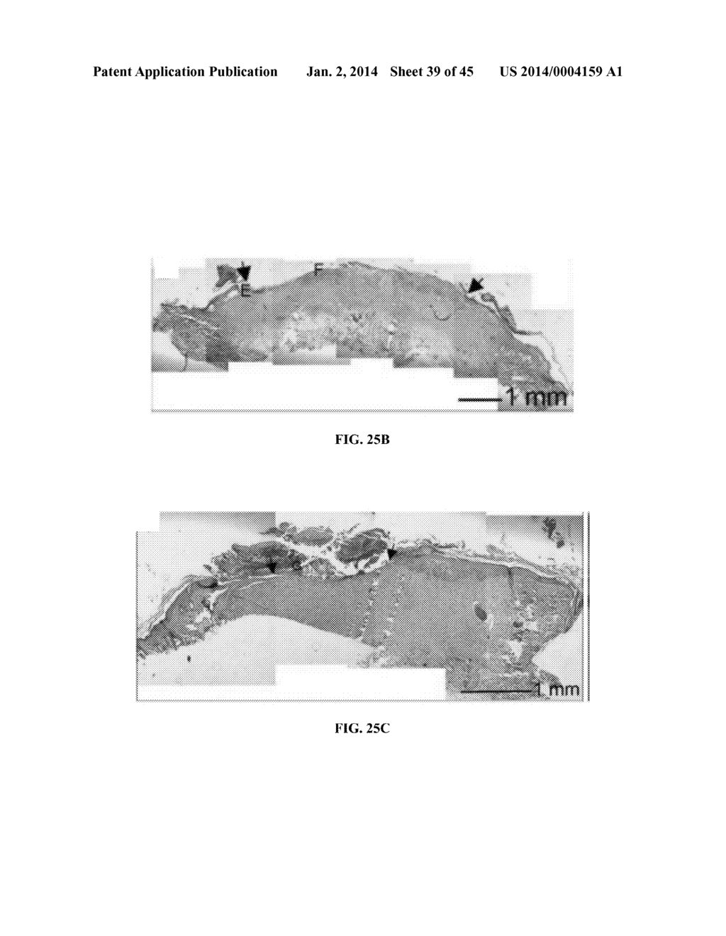 hight resolution of nanofiber scaffolds and methods for repairing skin damage diagram schematic and image 40
