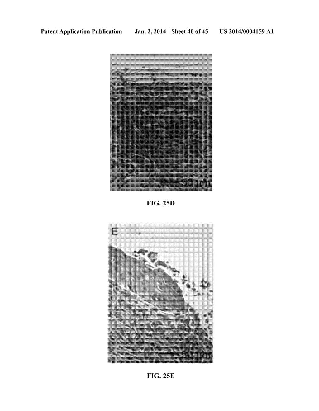 hight resolution of nanofiber scaffolds and methods for repairing skin damage diagram schematic and image 41
