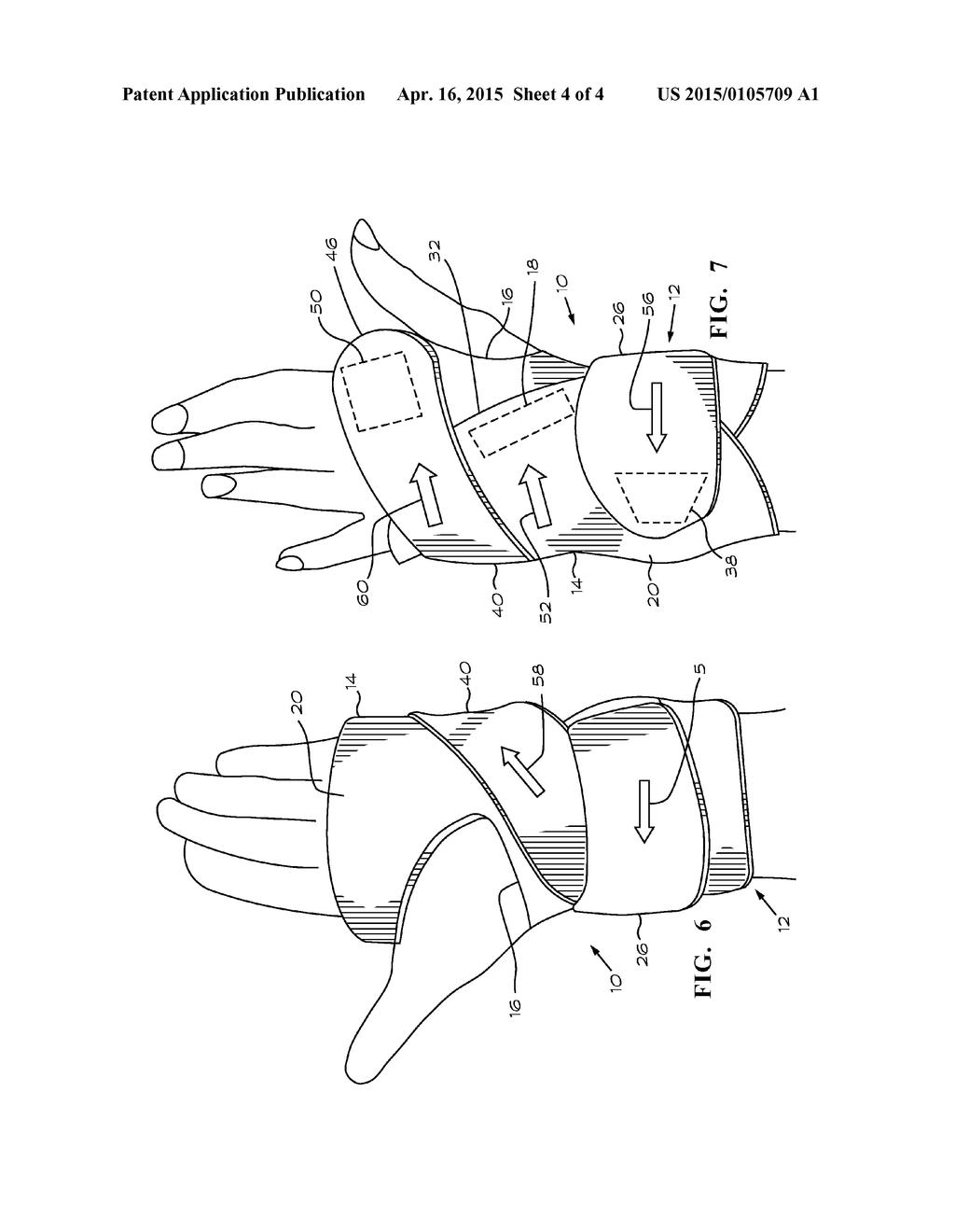 hight resolution of diagram of brace