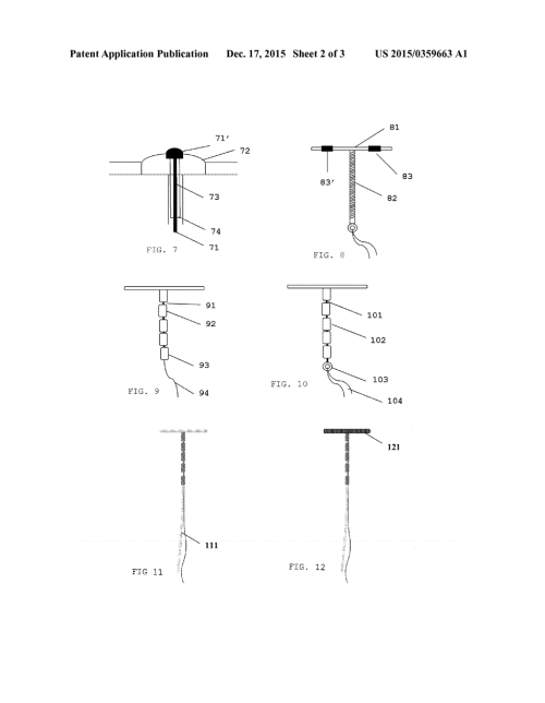 small resolution of copper releasing hybrid iud with adaptable retention arm connected to frameless body diagram schematic and image 03