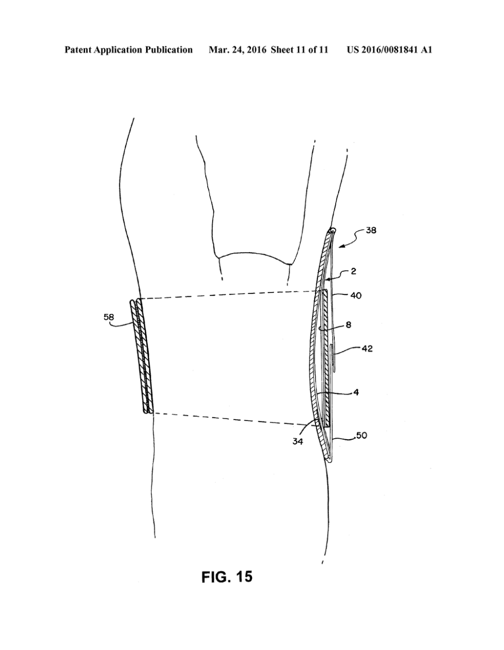medium resolution of adjustable lordosis orthopedic insert for a back brace diagram schematic and image 12