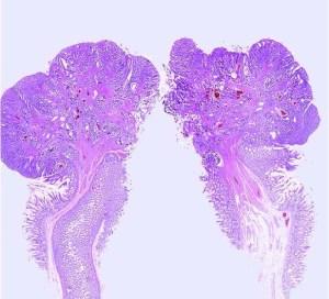Histopolyp