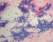 Trichilemmal Cyst Pathology Outlines - Year of Clean Water