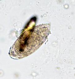 schistosoma haematobium eggs and uric acid crystals [ 1350 x 960 Pixel ]