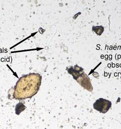 schistosoma haematobium eggs and uric acid crystals [ 1204 x 832 Pixel ]