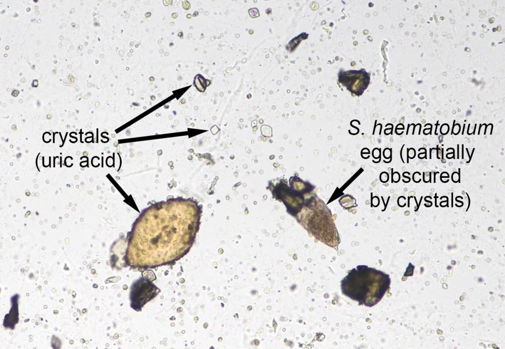 medium resolution of schistosoma haematobium eggs and uric acid crystals