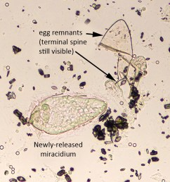 schistosoma haematobium miracidium newly hatched with egg remnant [ 1173 x 834 Pixel ]