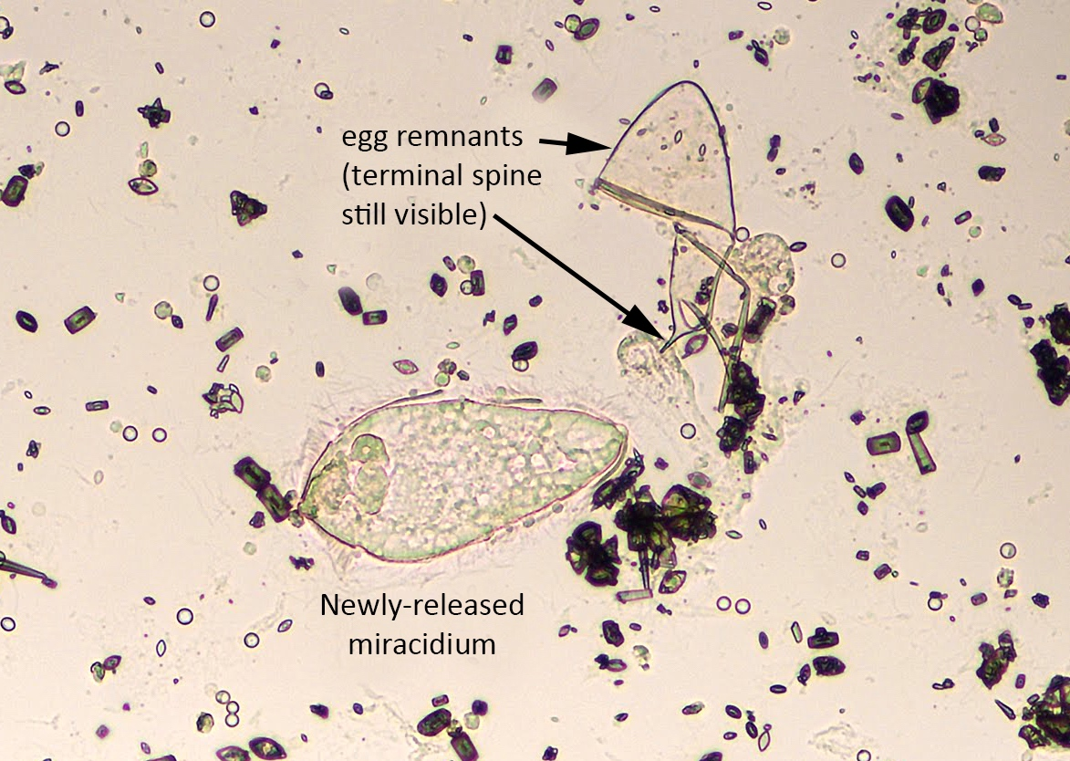 hight resolution of schistosoma haematobium miracidium newly hatched with egg remnant