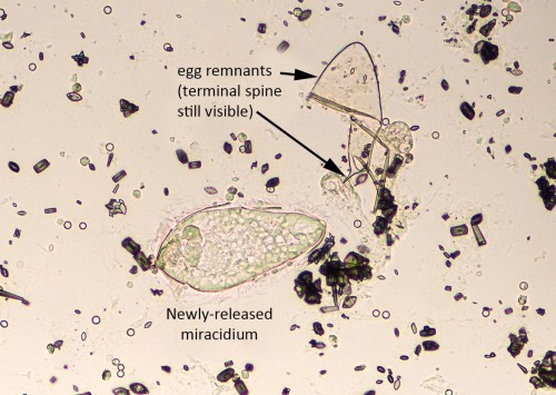 small resolution of schistosoma haematobium miracidium newly hatched with egg remnant