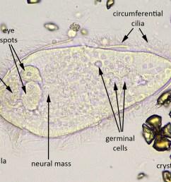 schistosoma haematobium miracidium newly hatched with egg remnant [ 1500 x 1067 Pixel ]