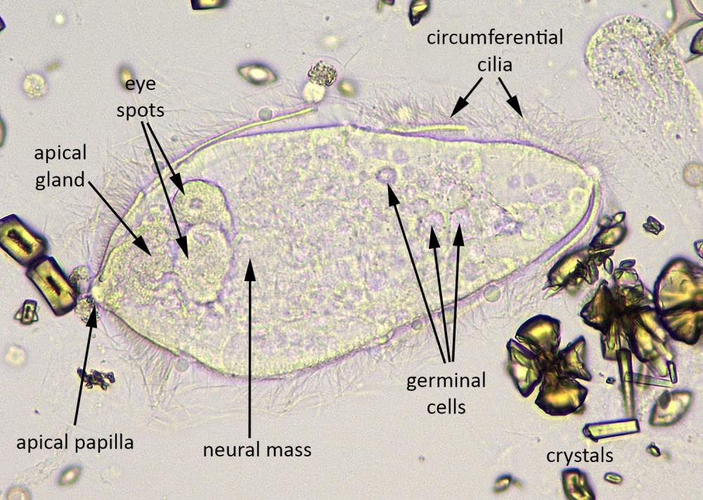 medium resolution of schistosoma haematobium miracidium newly hatched with egg remnant