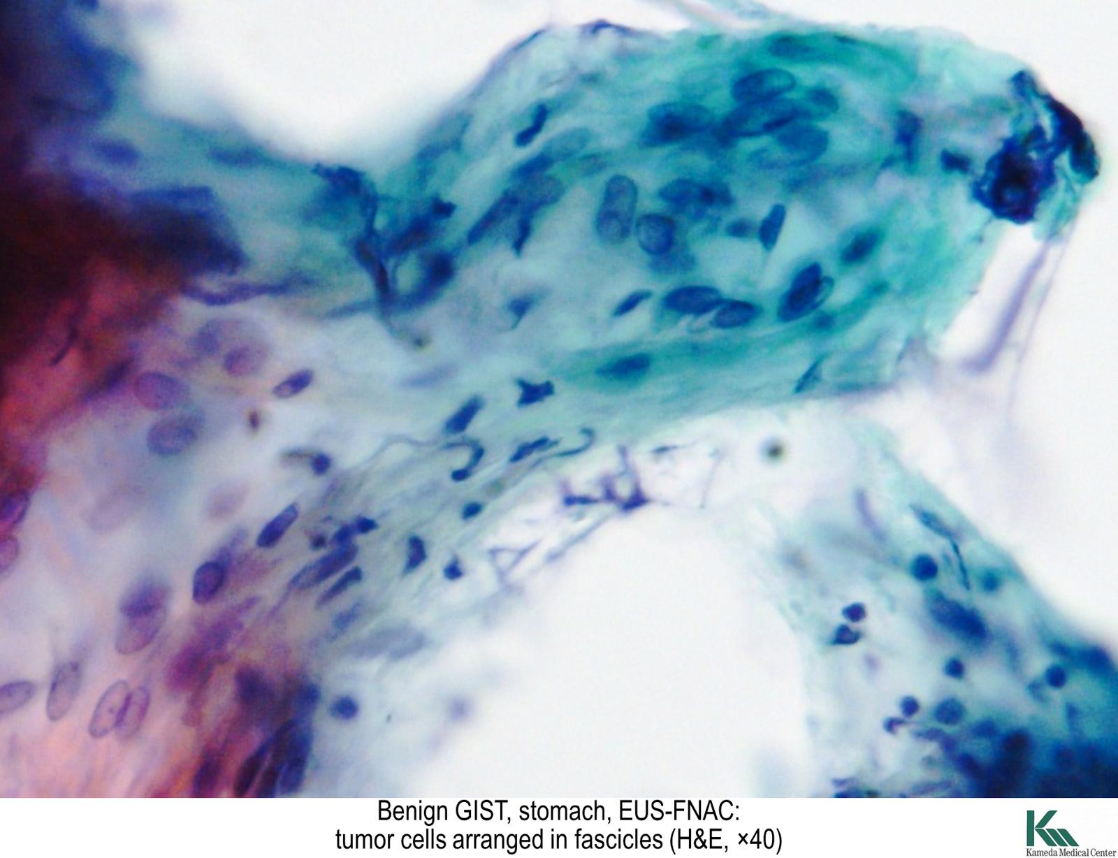 Pathology Outlines  Gastrointestinal stromal tumor GIST