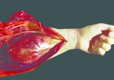 Image result for Brain Tumor: Malignant Peripheral Nerve Sheath Tumors picture