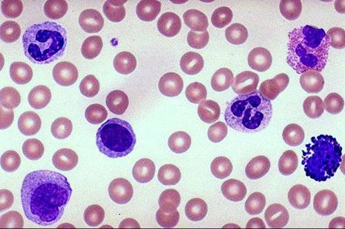 Neutrophil vs. monocyte