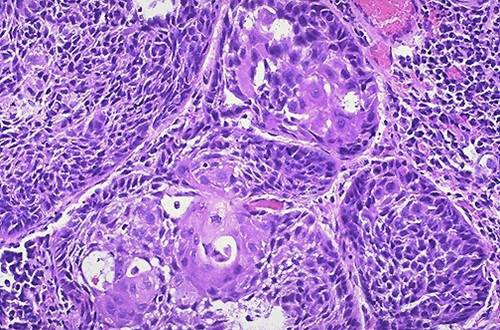 Squamous cell carcinoma, moderately-differentiated