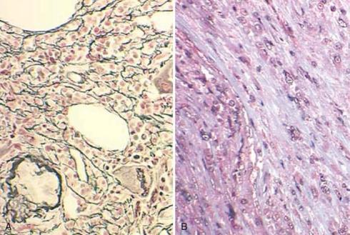 reticulin vs collagen