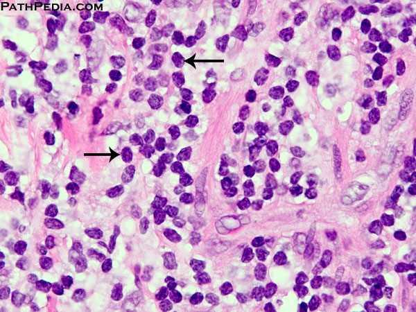 Histopathology Images Of Chronic Inflammation