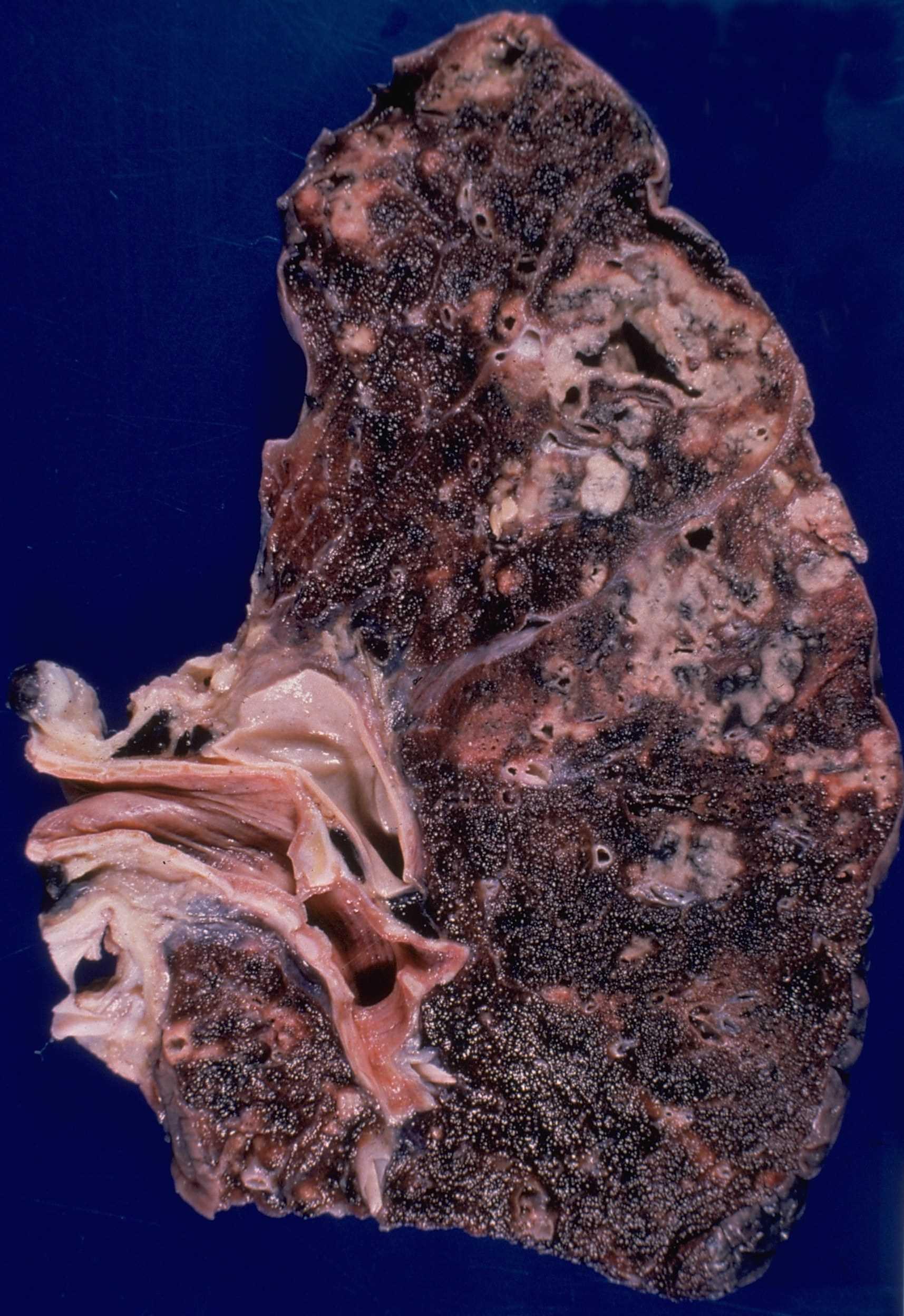 Pathology Images Gross Pathology Histopathology Histology
