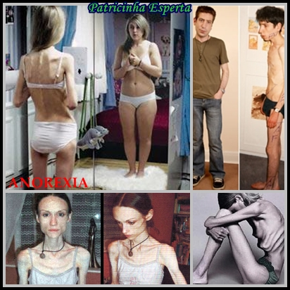 ANOREXIA  - Transtornos Alimentares III - Bulimia e Anorexia
