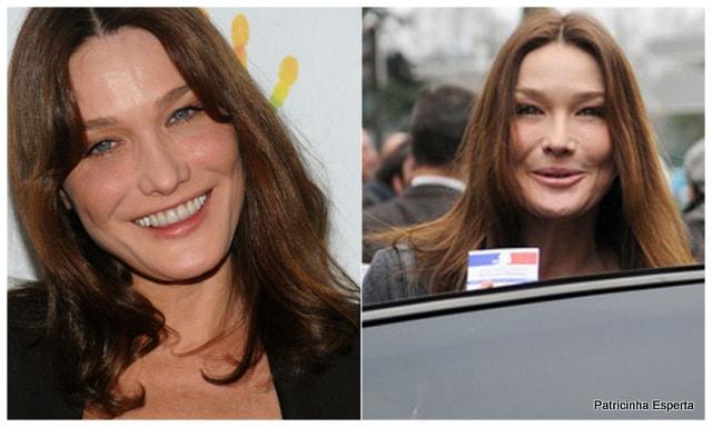 Patricinha Esperta261 - Elas Exageraram no Botox